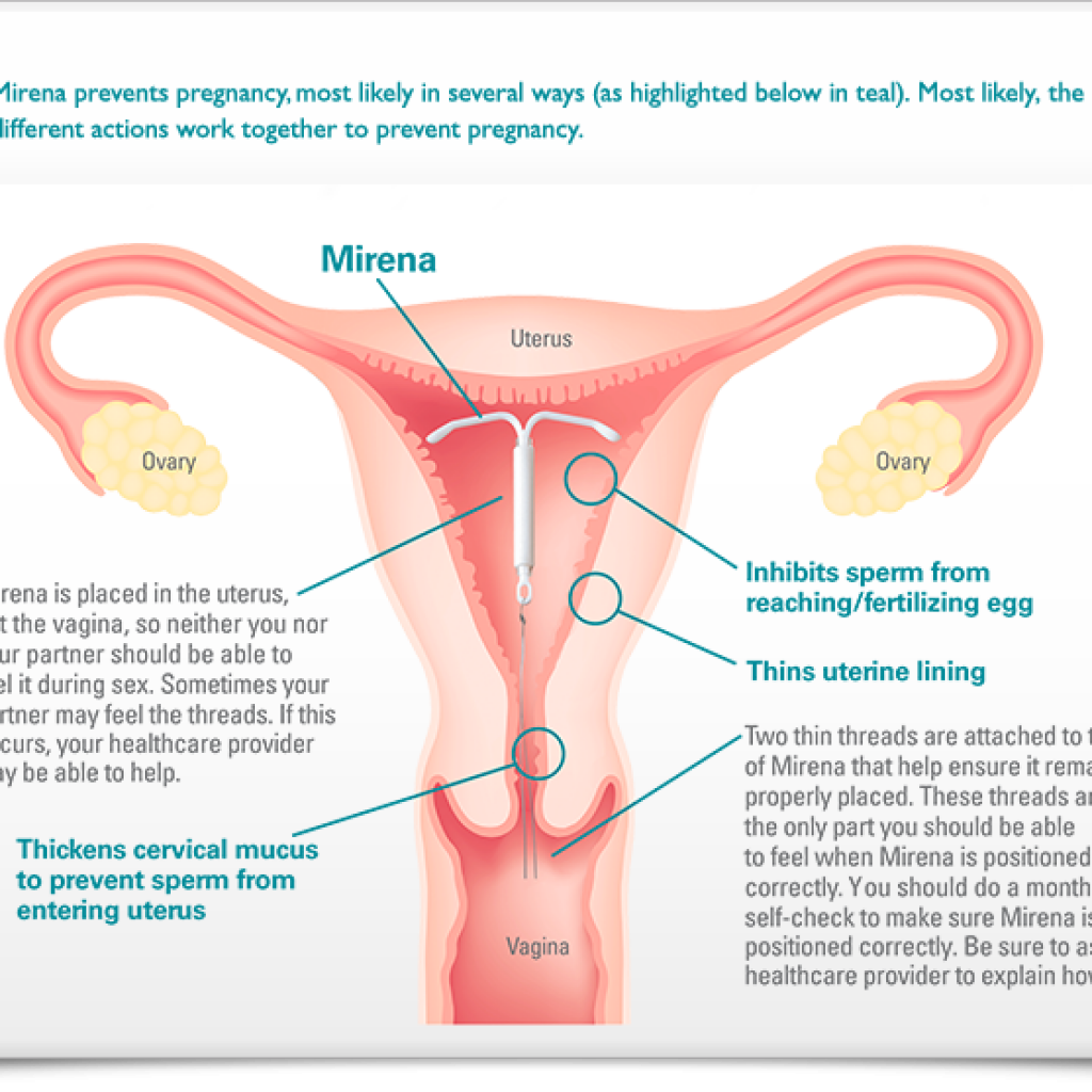 Pdf is there any impact of copper intrauterine device on female sexual functioning